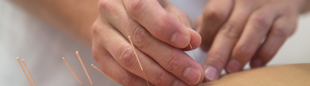Acupuncture can help you quit smoking