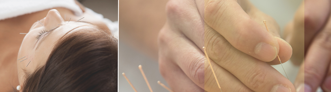 Acupuncture is effective for treating migraines and headaches
